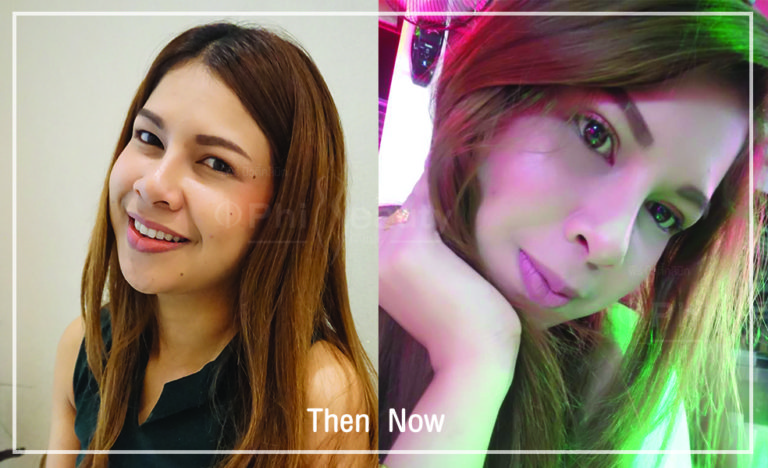 Review  double eyelid surgery at Phibeauty Clinic Phuket