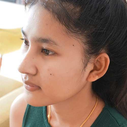 รีวิวเสริมจมูก เปลี่ยนหน้าให้เป็นสาวหวาน กับหมอจิ